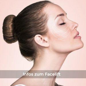 Infos-zum-Facelift