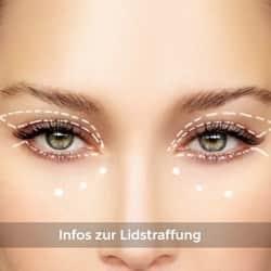 Informationsportal zum Augenlid straffen